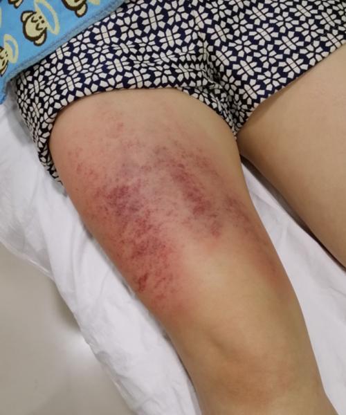 膝盖刮痧的方法图解