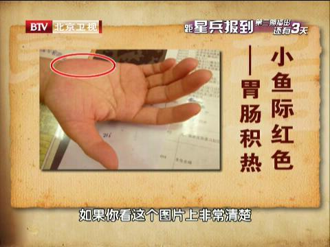 韩学杰/小鱼际红色代表的病症
