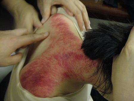 脖子刮痧的方法图解