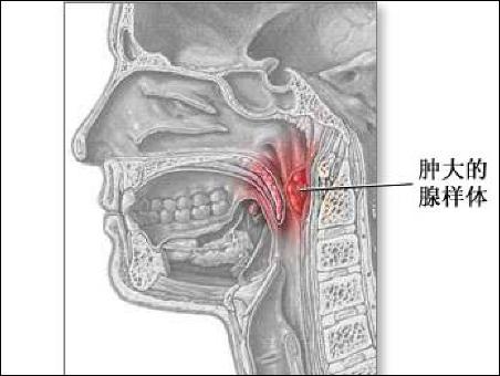 引起儿童腺样体肥大的原因是什么; 宁德耳鼻喉医院专家给大家讲讲预防