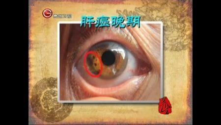 瑶医目诊眼睛部位图解