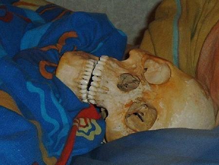 女子与死人骨头发生性关系遭指控