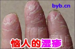 荨麻疹+自配中药治湿疹 -  - 舍得